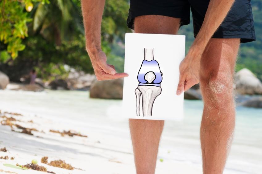 Osteoarthhritis