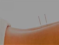 Acupuncture - Body of Life Health Centre - Frenchs Forest
