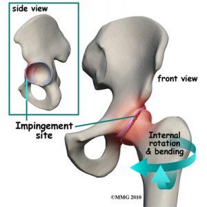 Body of Life - Hip Impingement