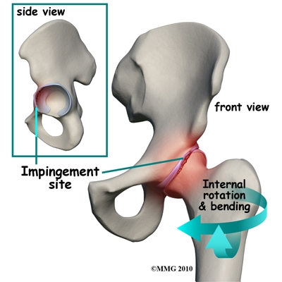 Body of Life - Hip Impingement